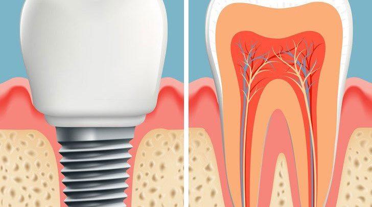 phương pháp trồng răng mới