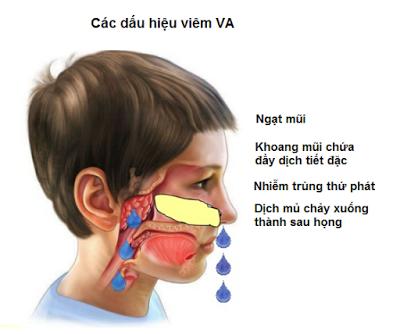 viêm VA ở trẻ