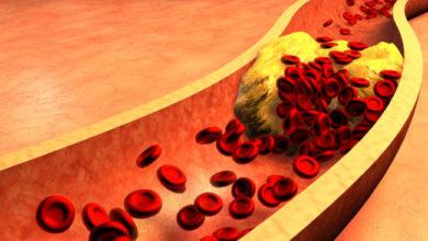 Cholesterol có trong máu