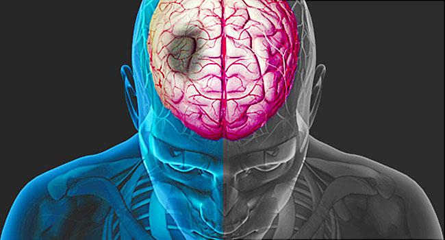 đột quỵ não