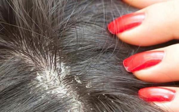 gàu gây nên rụng tóc